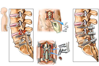 Lumbar Spine Injuries with Surgical Decompression and Fusion