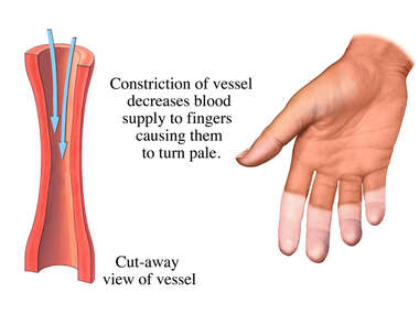 Constriction of Blood Vessels