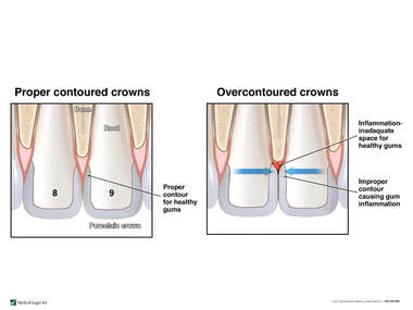 Overcontoured Crowns Causing Gum Inflammation