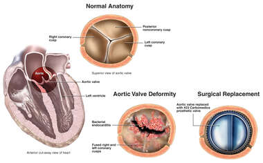 Aortic Valve Deformity and Surgical Replacement