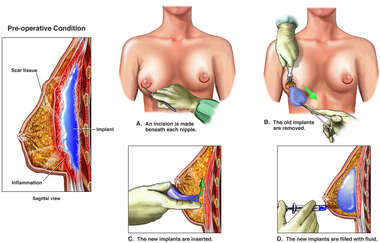 Capsular Contractures of the Breast with Surgical Repairs