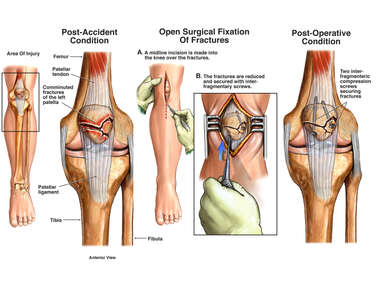Post-accident Knee Injuries with Surgical Repairs