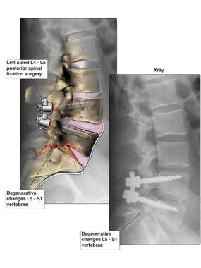 Degenerative Changes to the Lumbar Spine (L5-S1)