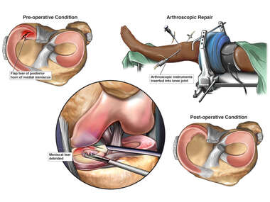 Left Meniscal Injury and Surgical Repair