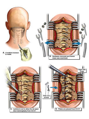 Cervical Open Door Laminoplasty