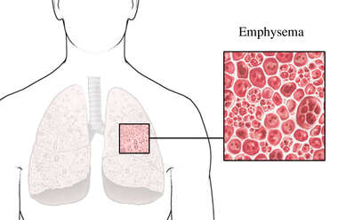 Emphysemic Lung