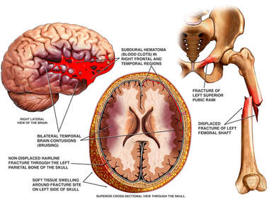 Traumatic Injury of the Brain and Femur