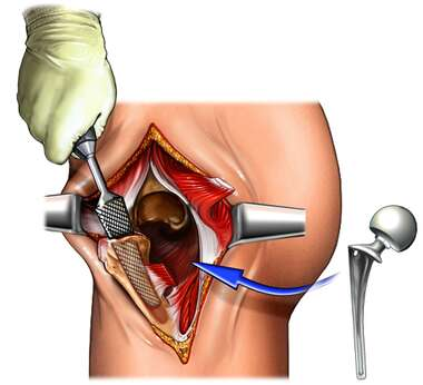 Insertion of Hip Prosthesis: Hip Replacement