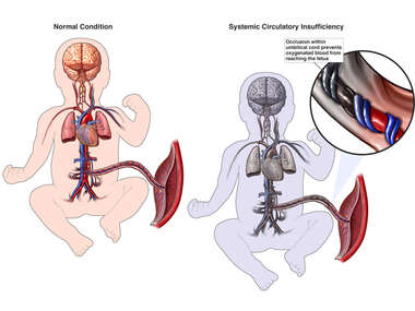 Generalized Systemic Circulatory Insufficiency