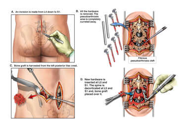 Post-operative Lumbar Spine Fusion Failure with Additional Surgical Repairs