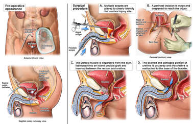 Surgical Repair of the Urethra
