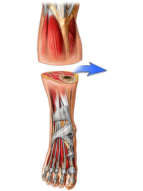 Amputation of Lower Leg
