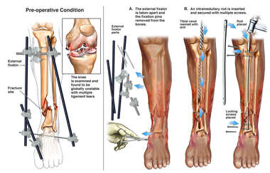 Intramedullary Fixation of Left Tibial Shaft Fracture