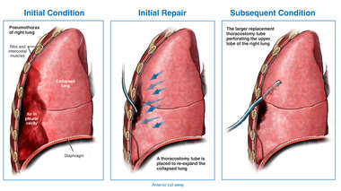Search: pneumothorax with placement of a chest tube to re