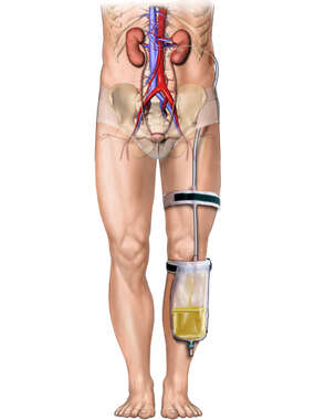 Nephrostomy Tube and Collection Bag - Male