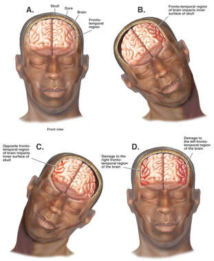 Whiplash - Mechanism of Closed Head Injury
