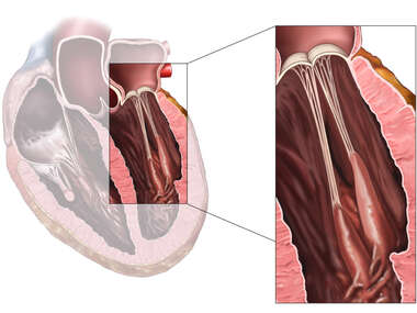Normal Anatomy of the Mitral (Bicuspid) Valve of the Heart