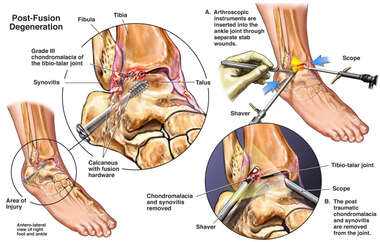 Additional Deterioration of the Ankle with Arthroscopic Debridement