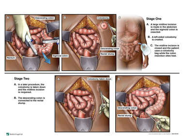 Two-stage Sigmoid Colectomy