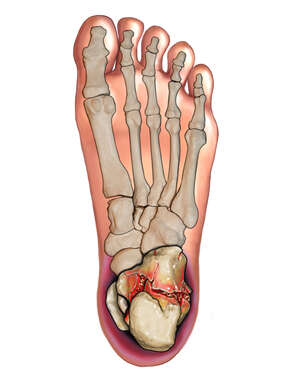 Bottom View of Calcaneal Fracture