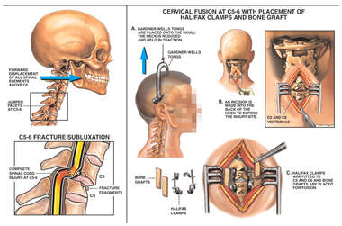 C5-6 Fracture Subluxation with Cervical Fusion Surgery