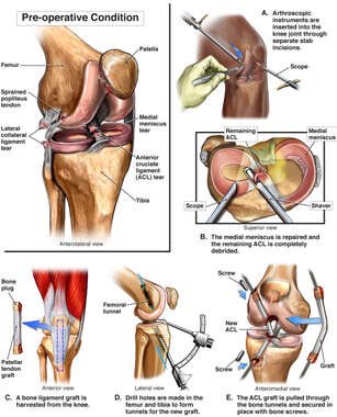 Right Knee Injuries with Surgical Repairs