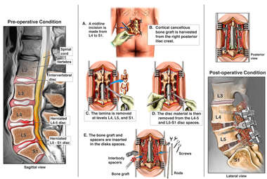 Lumbar Disc Herniations Double Level Surgical Discectomy and Fusion