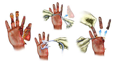 Traumatic Hand Injuries and Initial Surgical Repairs
