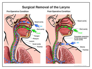 Surgical Removal of the Larynx