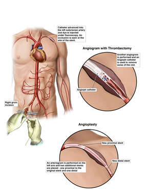 Additional Surgical Procedures to Repair Subclavian Artery Clot