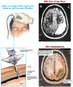Traumatic Closed Head Injuries and Placement of Intracranial Pressure Monitor
