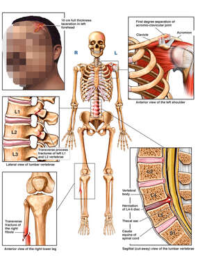 Male Skeletal Figure with Post-accident Injuries to the Scalp, Shoulder, Knee and Lumbar Spine
