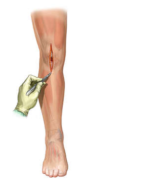 Midline Incision of the Knee