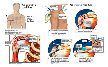 Right Shoulder Injuries with Surgical Repair