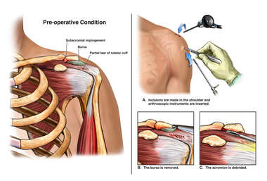 Left Shoulder Arthroscopy, Acromioplasty, Release of                                    Coracoacromial Ligament and Extensive Debridement