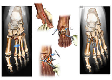 Left Foot Fractures with Initial Surgical Fixation