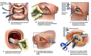 Additional Mandibular Fracture Fixation