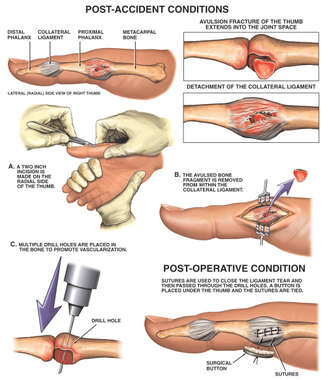 Avulsion Fracture and Ligament Damage of the Right Thumb with Surgical Repairs