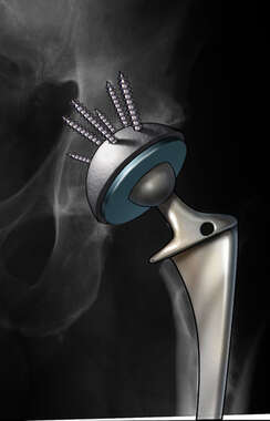 Hip Replacement Prosthetic, Xray View