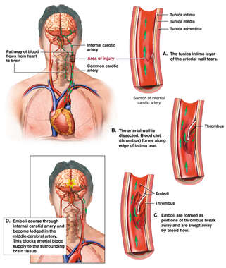 Carotid Artery Dissection with Subsequent Thrombus Formation