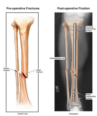 This exhibit features right tibial and fibular fractures with surgical intramedullary fixation.