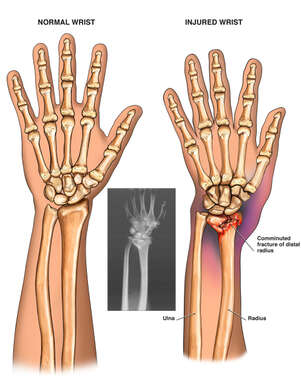 Surgical Fixation of the Left Wrist