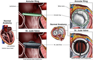 Alternate Repairs of the Mitral Valve