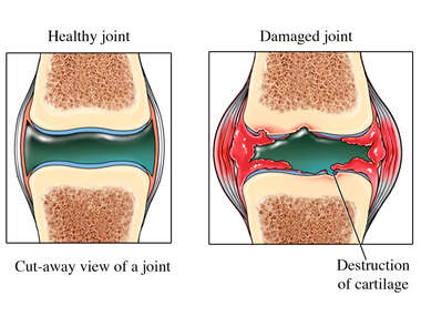 Healthy vs. Damaged Joint