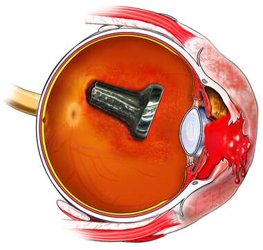 Eye Injury - Screw in the Posterior Chamber of Eye
