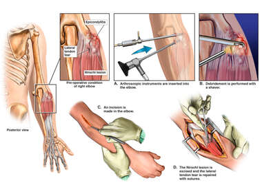 Right Elbow Injury with Arthroscopic and Open Surgical Repair