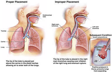 Misplaced Intubation Tube with Rupture of Lung and Tension Pneumothorax