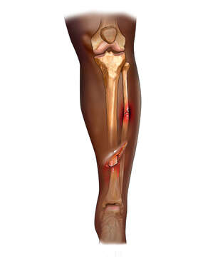 Open Tibial Fracture
