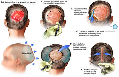 Proposed Future Surgical Repair of Scalp Injury