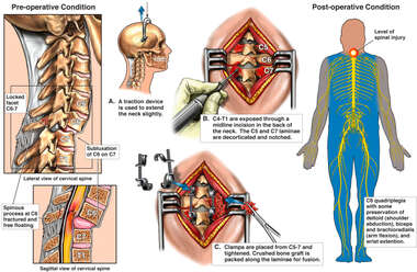 Cervical Spine Injury Surgical Repair